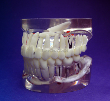 Transparent 1:1 Adult Teeth Pathology Model,Adult Tooth Pathological Planting Practice Model