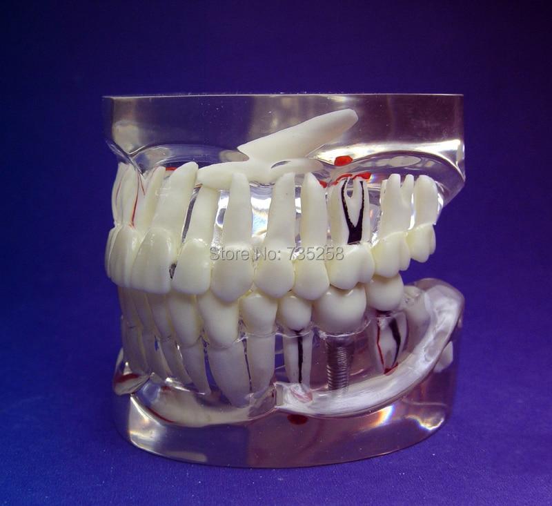 trasparente 1:1 adulti denti modello patologia , dente adulto patologica piantare pratica modellotrasparente 1:1 adulti denti modello patologia , dente adulto patologica piantare pratica modello