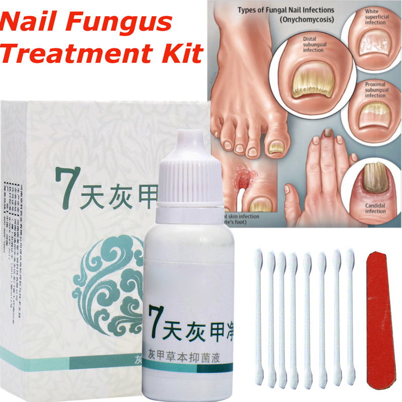 Anti Fungal Nail Infection Toe Nails Fungus Treatment Yellow Essence ...