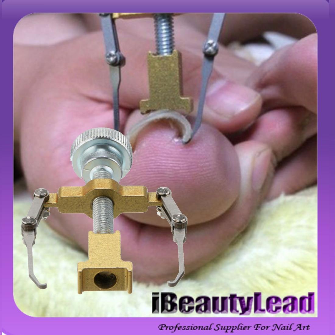 ̀ •́ Ingrown Toe Nail Correction Tool Fixer Recover Toe Paronychia ...