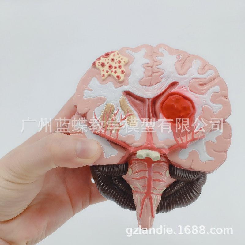 1:1 Humans Brain Disease Model Brain Anatomical Model Neurosurgery Cerebral Hemorrhage  Pathological Medical Teaching Model