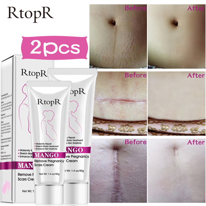 Mango Stretch Marks Repair Cream Remove Pregnancy Scars Acne