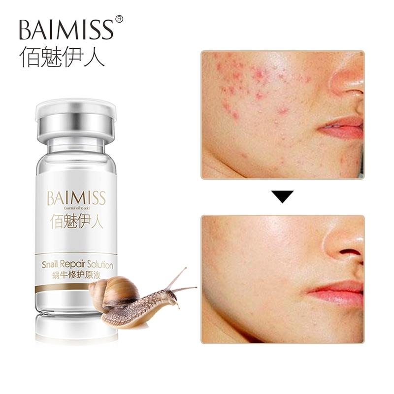 BAIMISS Snail Repair Serum Face Care Acne Treatment Blackhead Remover Repair Comedone Pimple Anti Wrinkle Moisturizing Skin Care