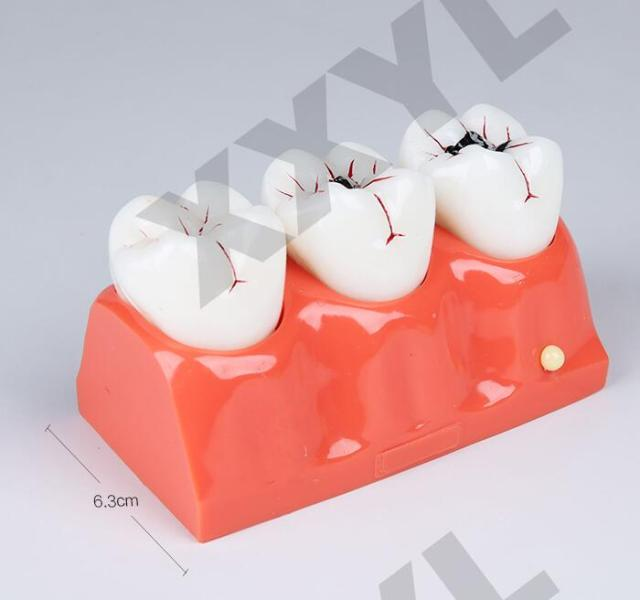 Human Dental laboratory anatomical teeth anatomy teach brain model ...