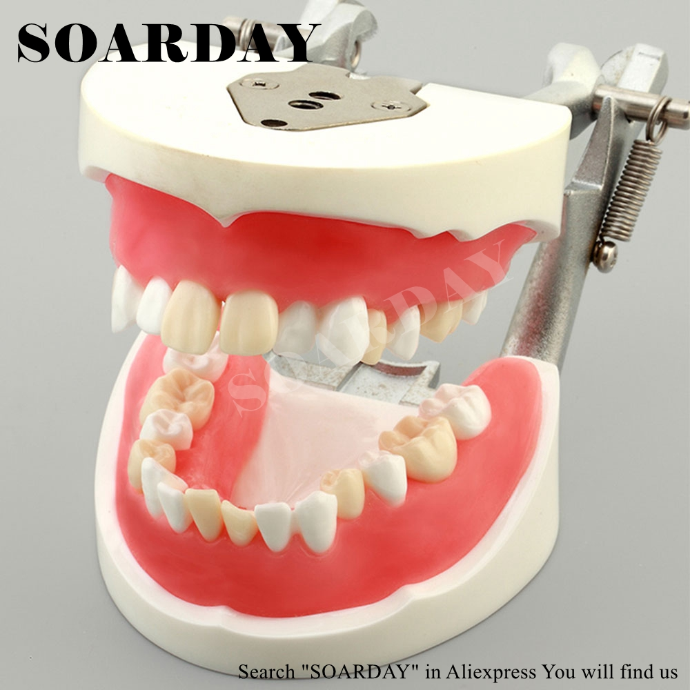 SOARDAY Dental Tooth Extraction Training Model Stomatology Teeth Model soarday children primary teeth alternating transparent model dental root clearly displayed dentist patient communication