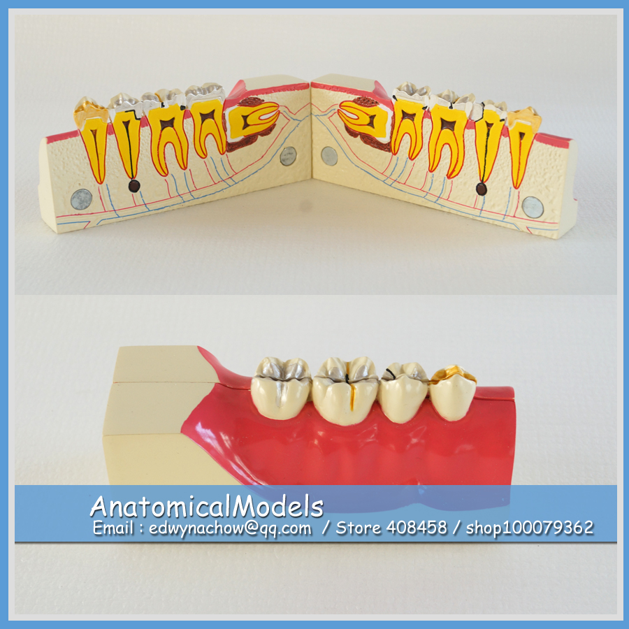 13155 DH1309 Lower Jaw Sagittally Section Model, Medical Science Educational Dental Teaching Models 13007 dh106 hard gum 32pcs teeth standard jaw model medical science educational dental teaching models