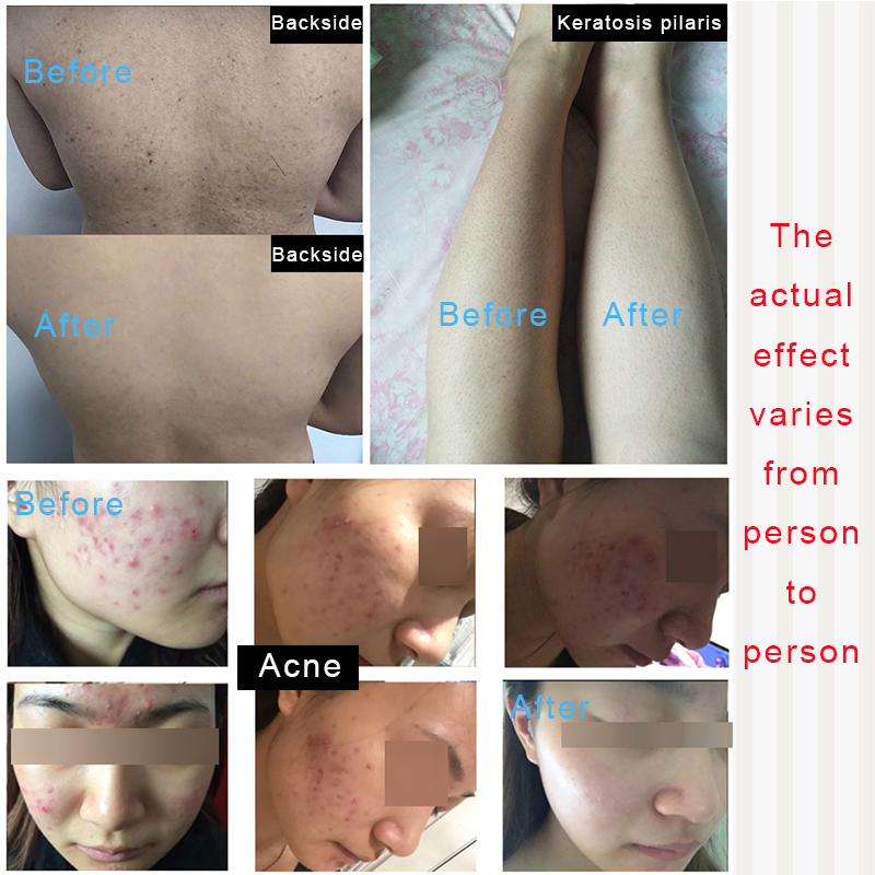 Peeling com Ácido Acne Pimple Remover Remendo Acne