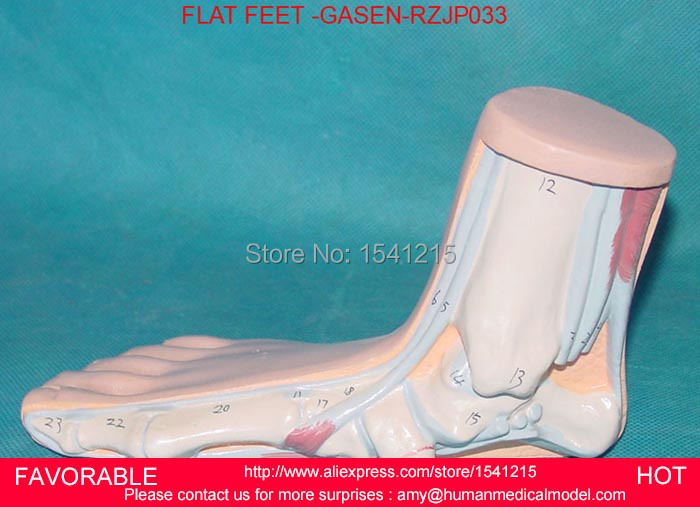 FLAT AND ARCHED FOOT,ANATOMY MODEL,ARCUATUS MODEL,HIGH ARCH FOOT MODEL, CLAW FOOT, ANATOMICAL FLAT FOOT-GASEN-RZJP033 foot model human foot palm muscle model arch foot model foot anatomy