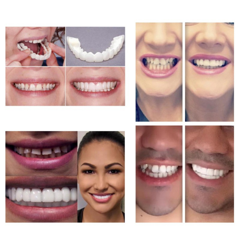 Teeth Cosmetic Instant Smile Comfort Fit Flex Cosmetic Teeth Denture Teeth Top Veneer Massage Relaxation 2