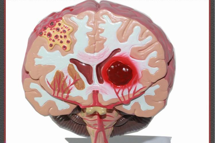 Life Size Humans Brain Stroke Anatomical Model Cerebral Palsy Brain ...