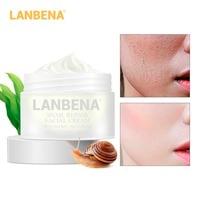 LANBENA Facial Cream 30g Snail Repair Whitening Day Cream Anti Wrinkle Anti Aging Acne Treatment Moisturizing Firming Skin Care Facial Self Tanners & Bronzers
