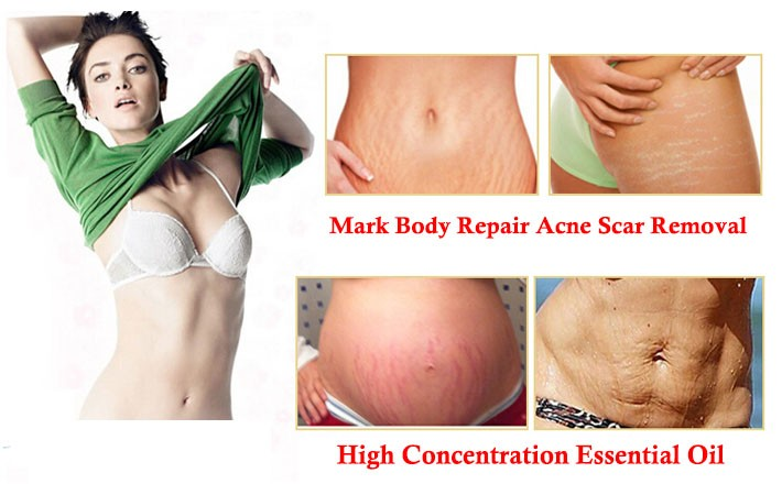 Stretch Marks Removing Compound Essential Oil Skin Care Treatment of Stretch Marks Body Repair Acne Scar 12