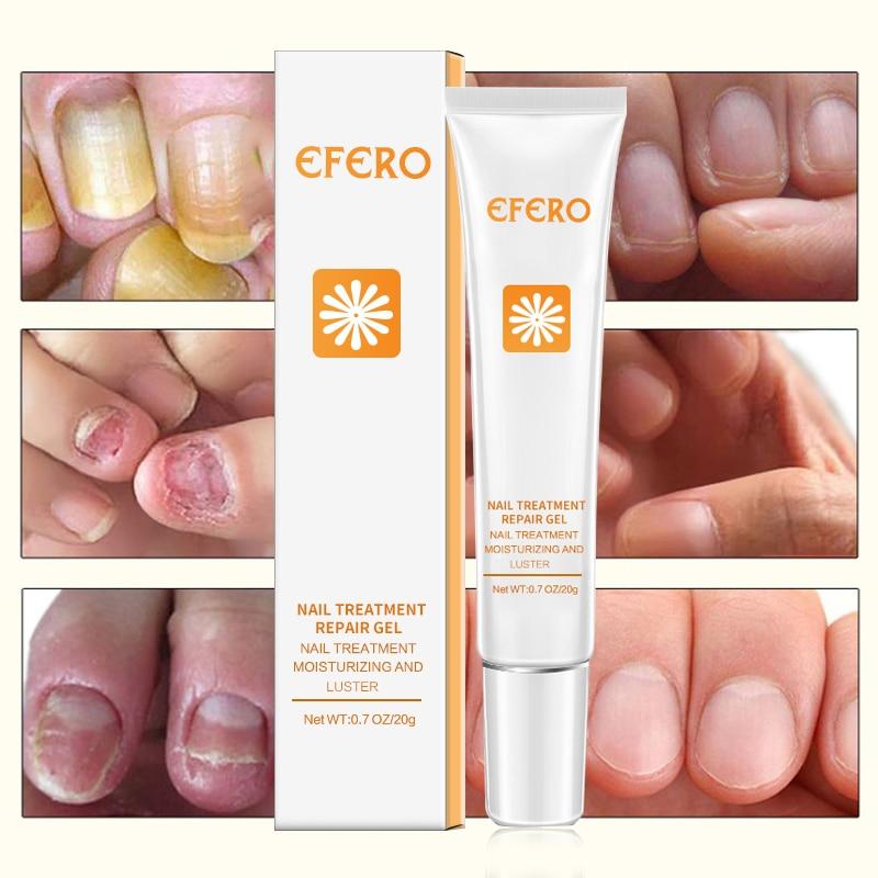 1Pcs EFERO Nail Serum Repair Essence Fungal Nail Treatment Repair Fungus Nail Toe Nourishing Brightening Nail Gel Essence in Nail Treatments from Beauty Health
