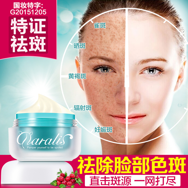 2017 Despeckle whitening cream  freckles chloasma Acne Treatment Cream moisturizing Natural mild skin Beauty Freeshipping