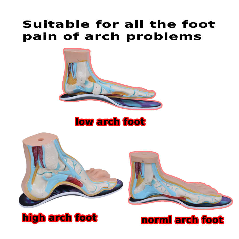 095c12f932 ... EXPfoot 3D Orthotic Flat Feet Foot High Arch Gel Heel Support Shoe  Inserts Insoles Pads ...