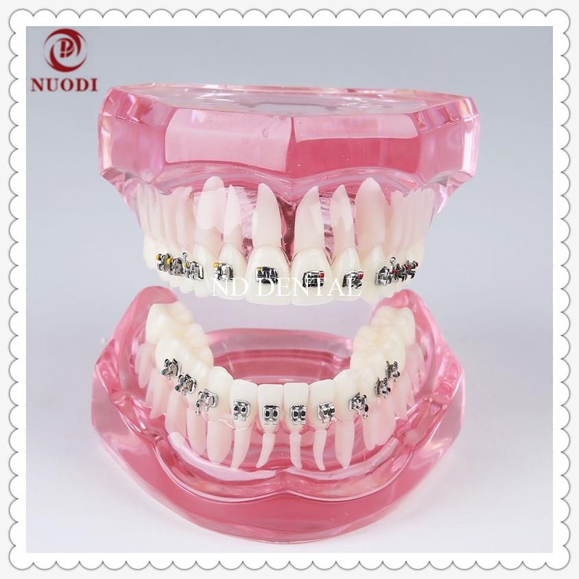 Orthodontic teeth Model with Metal bracket/Education Teeth model M3001/Orthodontic practice model/Pink transparent tooth model orthodontic teeth trainer bracket damon q self ligating bracket ormco damon q ormco metal bracket