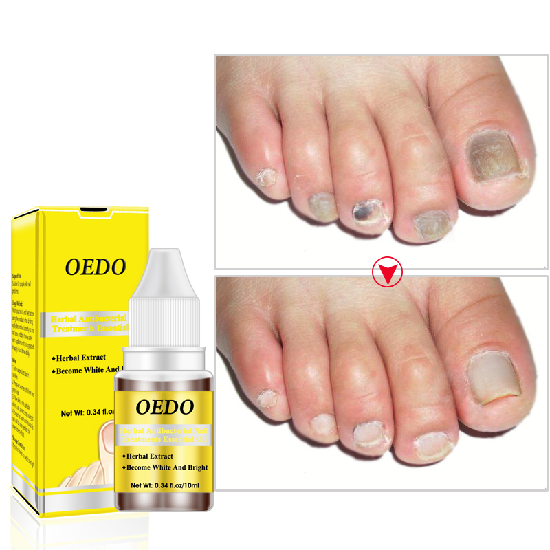 OEDO 10ml Nail Treatment Essence Nail Oil Effective Moisturizing Fungus Removal Foot Care Liquid Spa Nail Care TSLM2