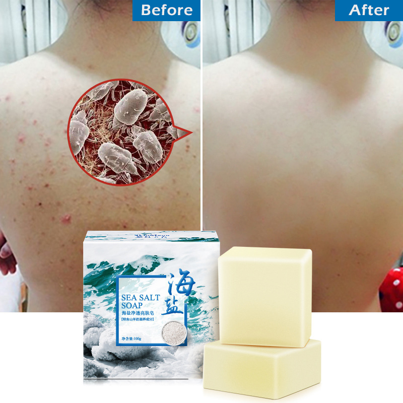 100g Sea Salt Whitening Soap Cleaner Removal Pimple Pores Acne Treatment Goat Milk Moisturizing Face Wash Soap Skin Care