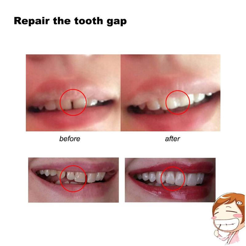 Prothèse dentaire temporaire 10g/100g