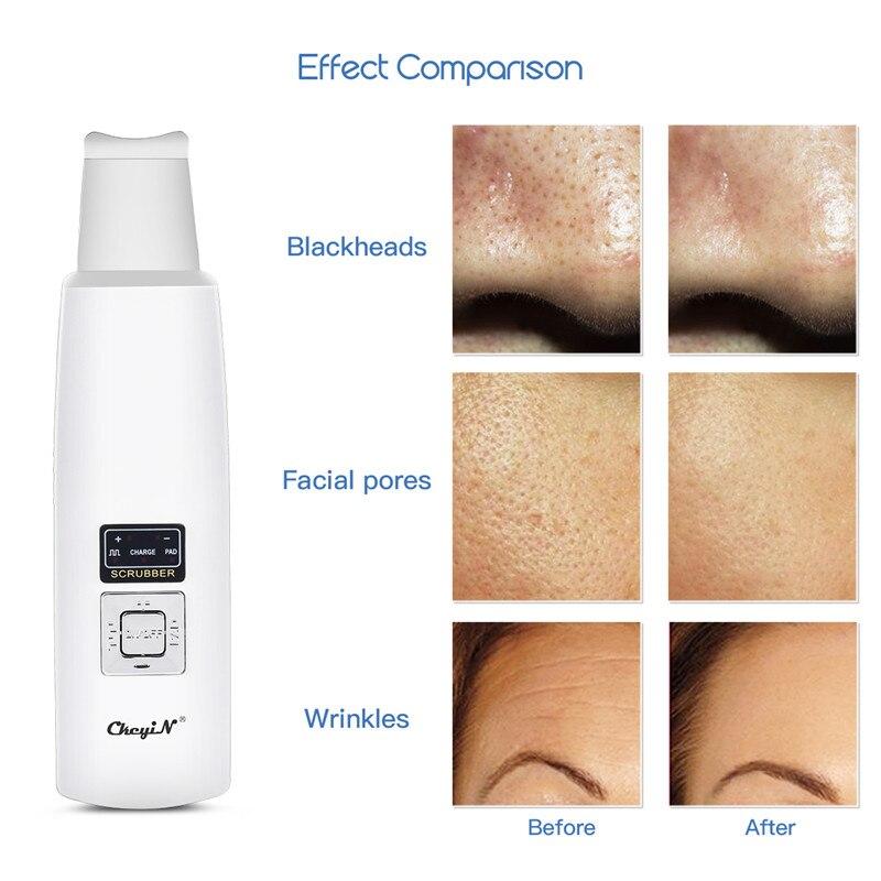 Ultra sônico purificador da pele íon profunda