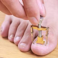 Ingrown tonails 페디큐어 발 네일 케어 도구 피트 용 파일 orthotic acronyx ingrowing nail onyxis bunion corrector for toes(China)
