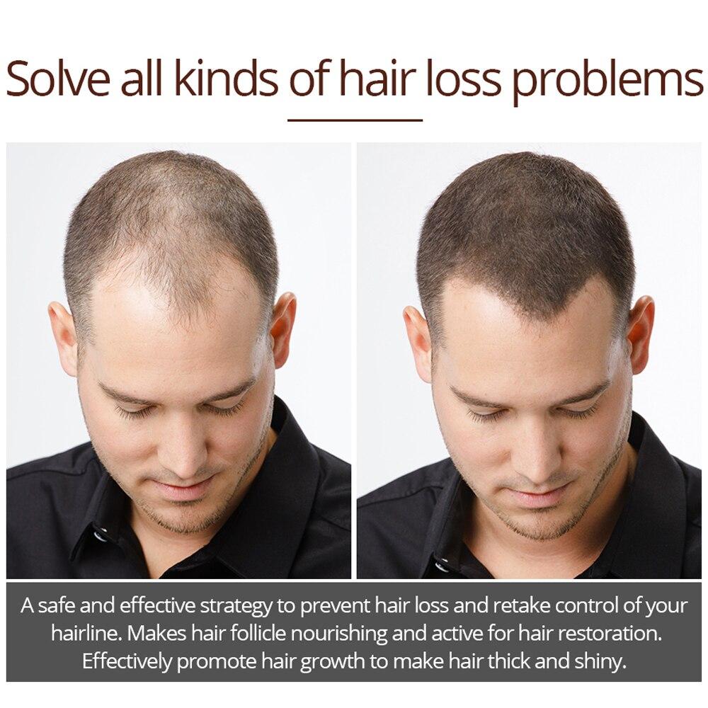 VIBRANT GLAMOUR Hair Growth Spray Serum Essential Oil Nourish Scalp Hair Roots Prevent Hair Loss Clean Scalp Grease Hair Care 4