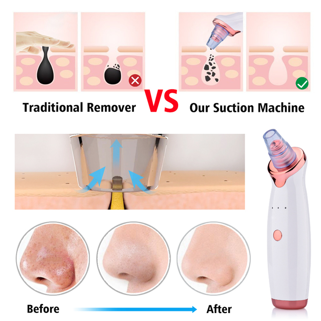 Blackhead Remover Facial Cleaner Deep Pore Acne Pimple Removal Vacuum Suction Diamond Beauty Tool Face Household SPA Skin Care 5