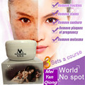 New Bright Skin Cream Freckles Sunburn Plaques Of Pregnancy Remove Face Brighten Magic Glow Freckle Removal Whitening Cream
