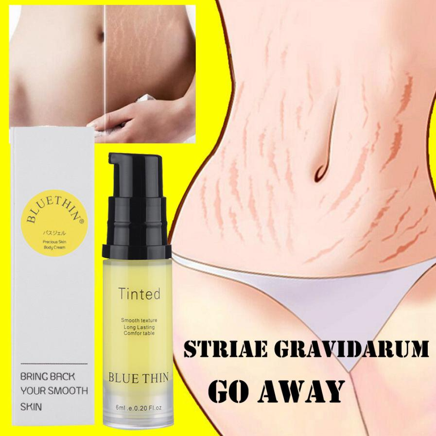Striae Repair Cream  Removal Acne Scar Stretch Marks Cream Fat Scar Striae Gravidarum Treatment 6ML Dropshipping 18aug15
