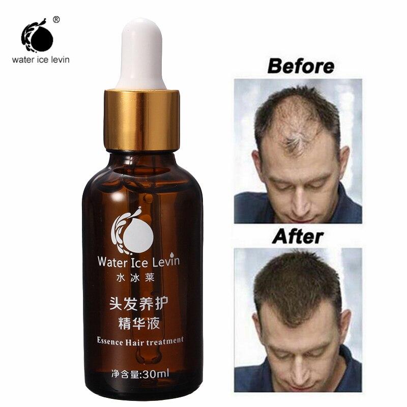 Шампунь Water Ice Levin, сыворотка для быстрого роста волос, лечение выпадения волос, быстрорастущая густая жидкость для быстрого роста волос, 3 шт....