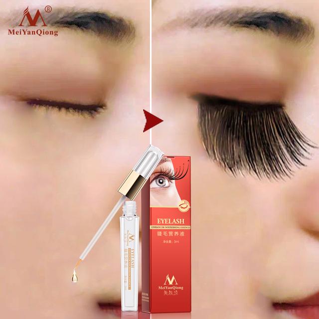 Mei Yan Qiong Tratamiento de crecimiento de pestañas a base de hierbas suero líquido realzador ojo más grueso
