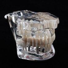 1PCS Dental Implant Disease Teeth Model with Restoration Bridge Tooth Dentist for Medical Science Teaching NEW