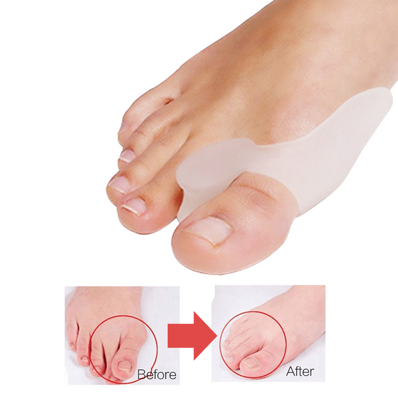 2Pcs Special Hallux Valgus Pro Protector Bone Thumb Orthotics Braces Corrector Soft Silicone Foot Big Toe Separator Pedicure