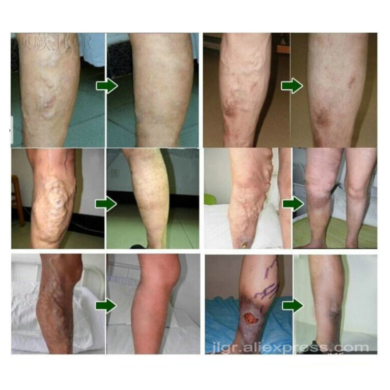 Spider Veins Varicose Treatment Plaster Varicose Veins Cure Patch Vasculitis Natural Solution Herbal Patches Pain Relief Sticker hurbolism cure tinnitus tea bag natural herbal secret formula for cure hearing loss and deafness herbal tea