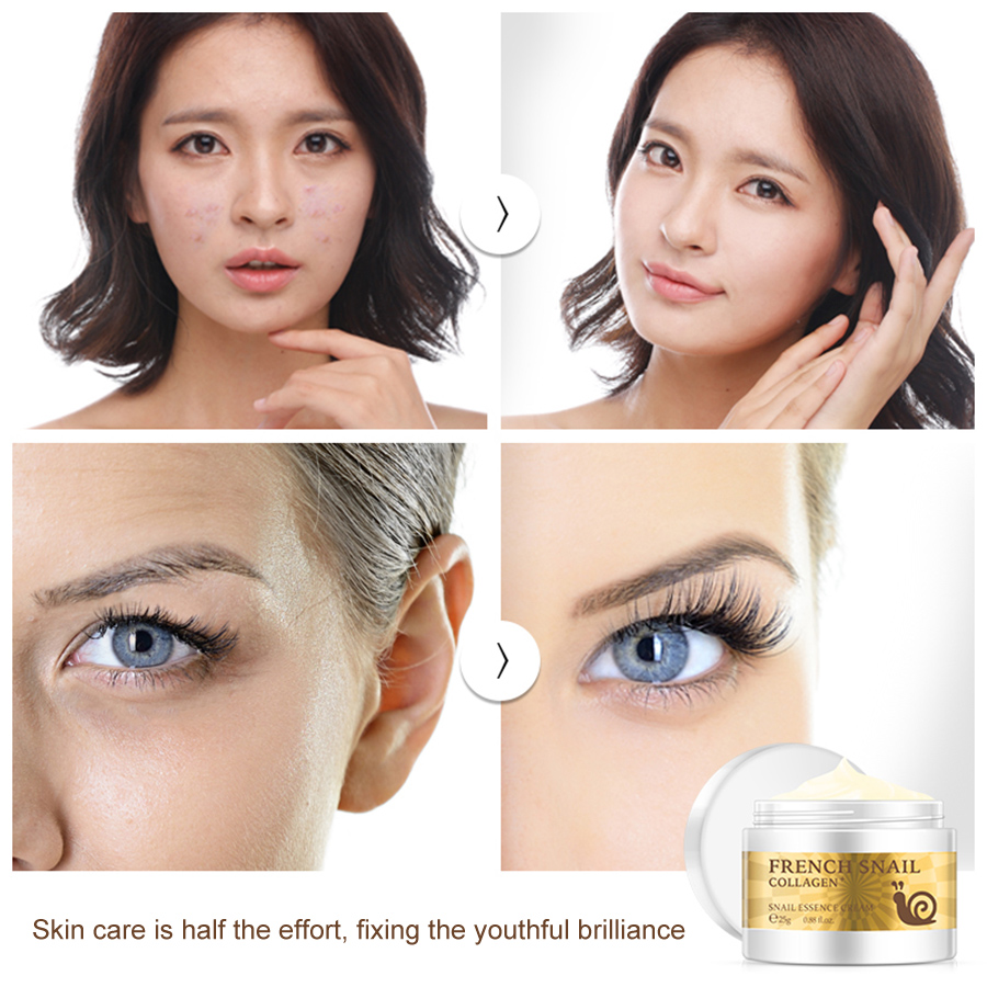 Snail Face Cream Face Hyaluronic Acid Anti-aging  Removal Acne Scar Moisturizer Nourishing Stretch Collagen Essence TSLM1