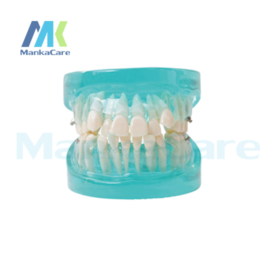 Manka Care -  24 pcs Tooth, Orthodontic Model Without bracket Oral Model Teeth Tooth Model