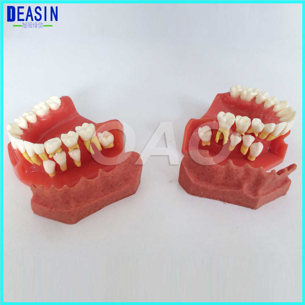 Dental Tooth Teaching Model Children Permanent Tooth Alternative Model  Deciduous Teeth Removable Demonstration For Kids Studying