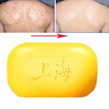 Шанхайское серное мыло, контроль над маслом, лечение акне, средство для удаления угрей, 90 г, Отбеливающее очищающее средство, китайский традиционный уход за кожей