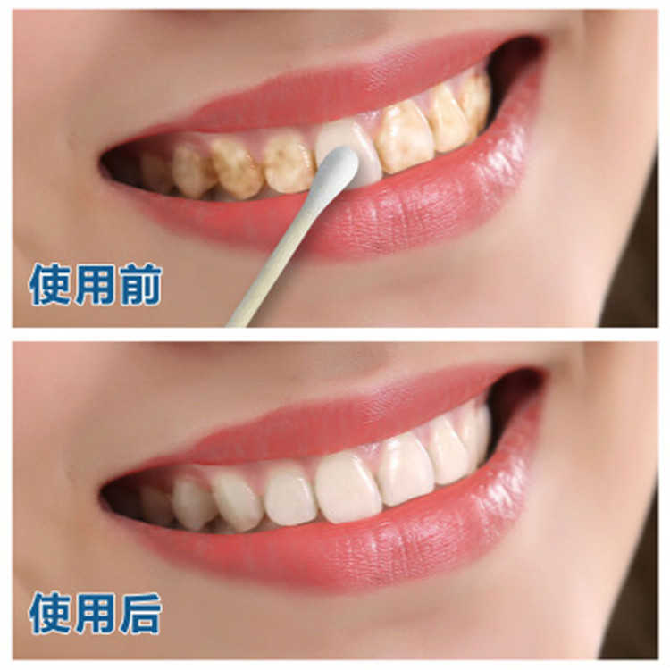 10ml Teeth Whitening Water Oral Hygiene Cleaning Teeth Care Tooth Cleaning Whitening Water Clareamento Dental Odontologia 1PC