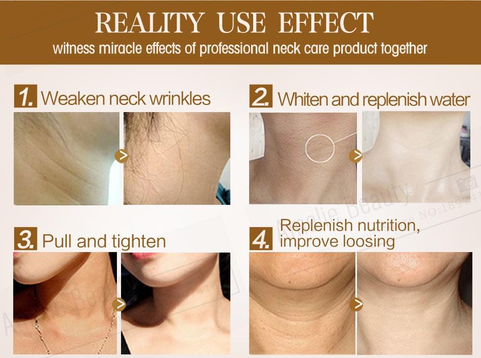 MEIKING Neck Cream Skin Care Anti wrinkle Whitening Moisturizing Firming Neck Care 100g Skincare Health Neck Cream For Women 5