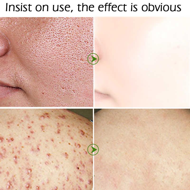LEBENDIGE GLAMOUR Tee Baum Anti-akne Gesicht Creme Akne Narbe Schrumpfen Poren Gesichts Beseitigt Acnes Creme Öl steuer Reparatur spot