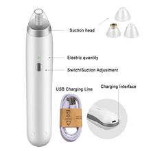 BellyLady Blackhead Vacuum Suction Pore Vacuum Cleaner Facial Blackhead Acne Removal Tools Nose Acne Pimple Blackhead Remover blackhead facial pore vacuum cleaner electronic blackhead removal facial cleaner acne remover extraction pore comedone extractor