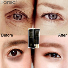 ROREC Hyaluronic Acid Eye Creams Anti-Wrinkle Remover Dark Circles Under The Eyes