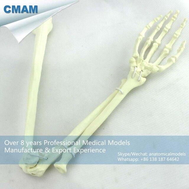 12325 CMAM TF14 Schaum Kortikale Shell Normalen Anatomie Großen ...