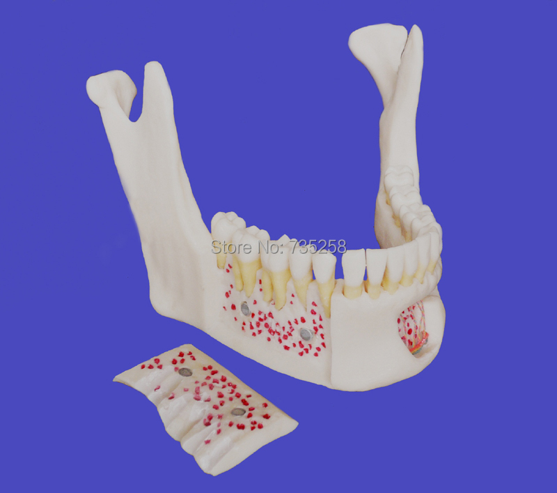 Senior 1:1 Simulation Model of Mandible,High Copy of Neurovascular Mandibular Teeth Model senior residences