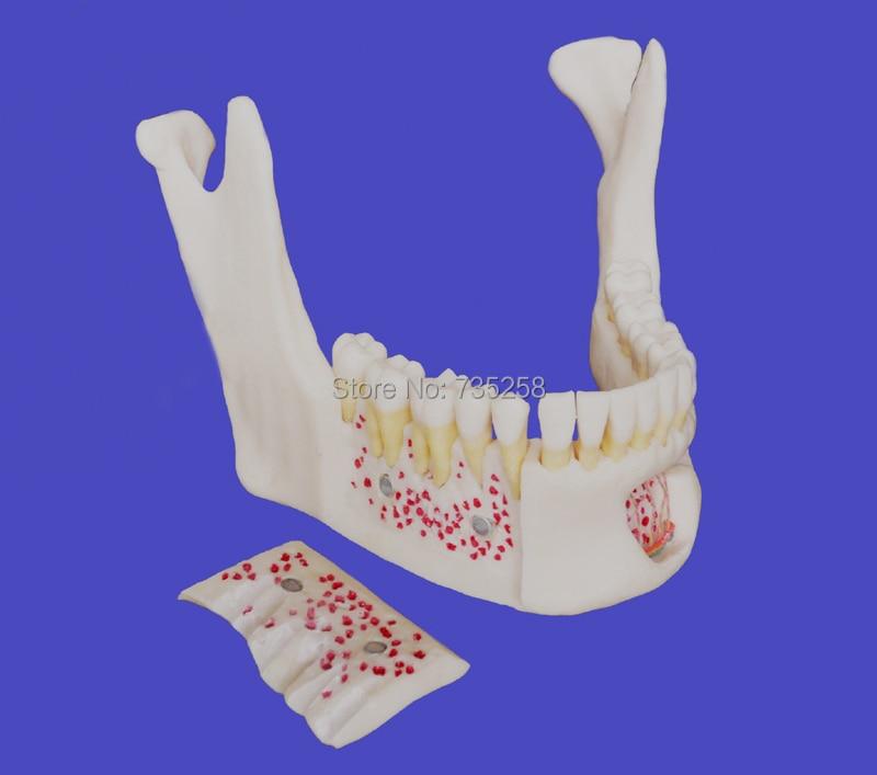 anziano 1:1 simulation model of mandibola , alta copia di neurovascolare mandibolare denti modelloanziano 1:1 simulation model of mandibola , alta copia di neurovascolare mandibolare denti modello