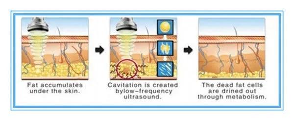 Skin Tightening Ultrasonic Cavitation Radio Frequency Slimming Machine