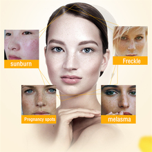 Dimollaure 50g pure 99% Kojic Acid face care whitening cream remove Freckle