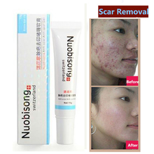 hot sales Nuobisong facial scar removal cremas Spots treatment whitening face cream stretch marks moisturizing