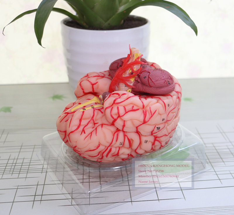 ISO Certification Cerebral Artery Dissection Model,Brain Model,Human ...